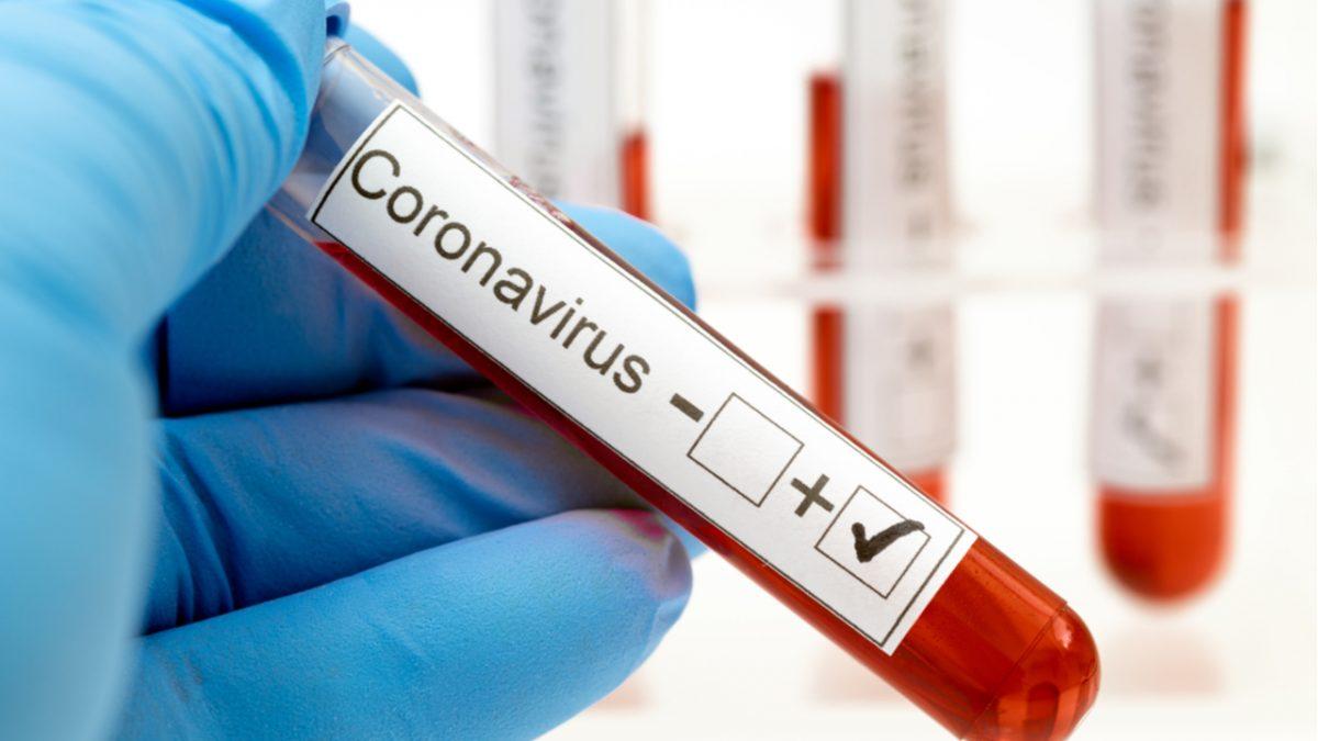 Coronavírus: Bradesco, Itaú e Santander vão comprar 5 milhões de testes